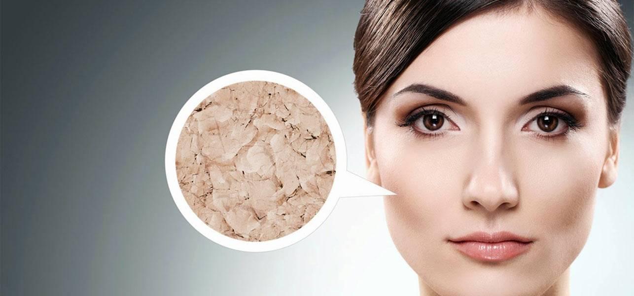 بیماری پوستی ایکتیوز چیست؟