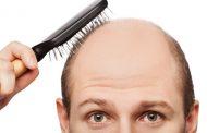 ریزش موی آندروژنیک علل و درمان