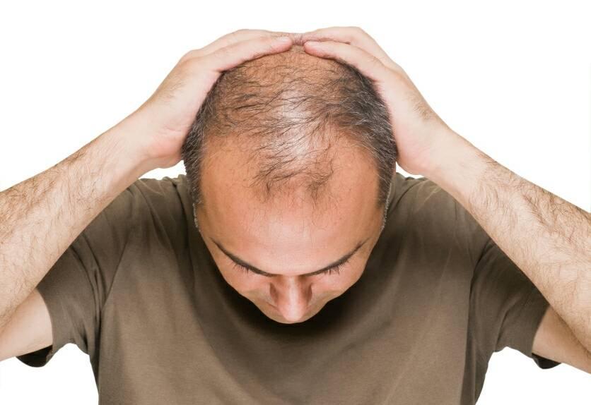 عواملی که سبب ریزش مو می شود