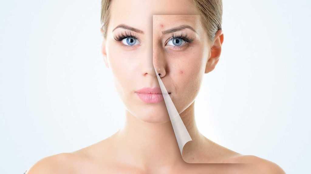 چگونه زخم های صورت خود را درمان کنیم؟
