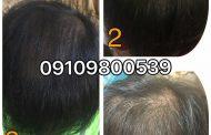 سرعت رشد موهای خود را بالا ببرید