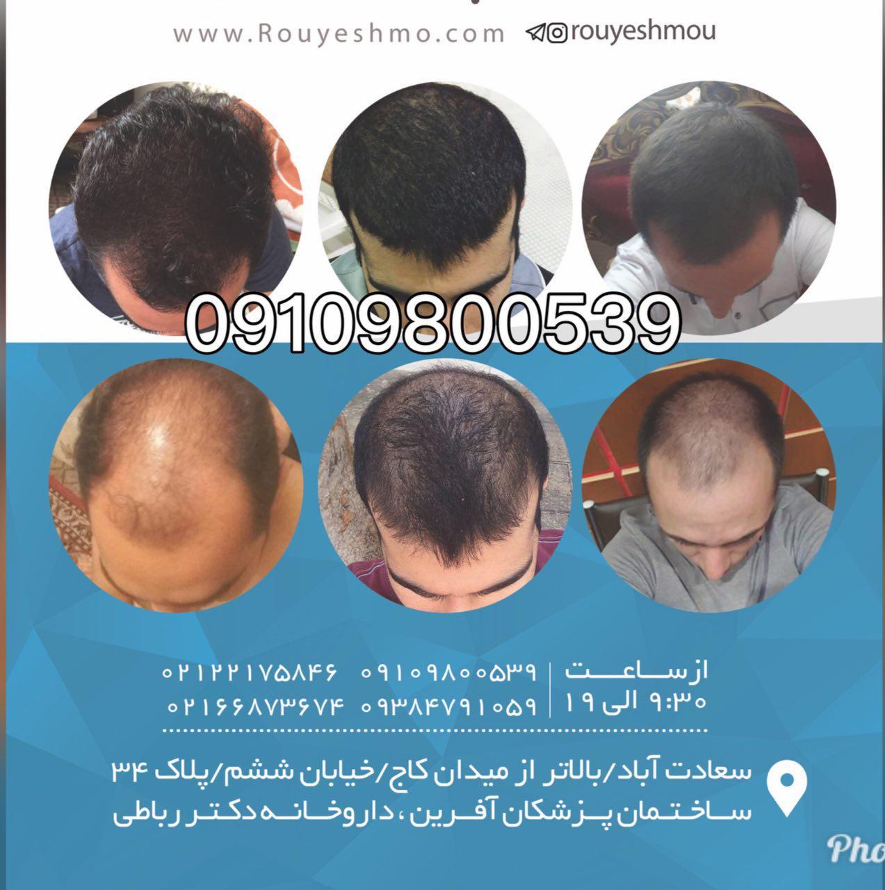 سرعت رشد موی خود را بالا ببرید