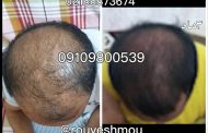 آناتومی موی خود را بررسی کنید