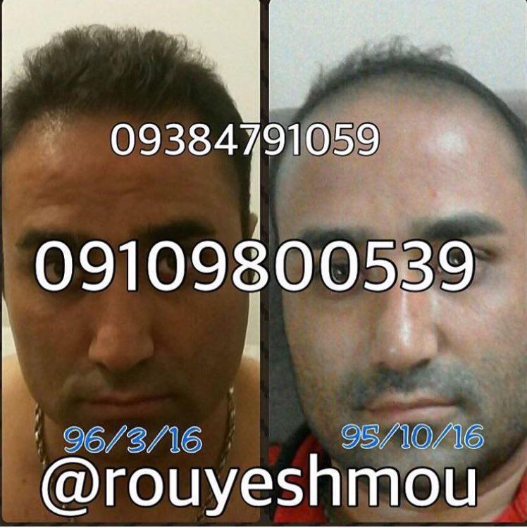 راهکارهایی جهت درمان ریزش موی مردان