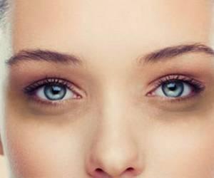 درمان کبودی زیر چشم