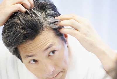 چگونه از سفیدی زودرس موها پیشگیری کنیم