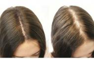 درمانهای طبیعی برای ریزش مو و رشد مو