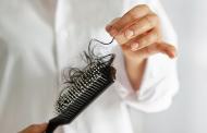۱۰ نکته که باید در مورد ریزش مو بدانید