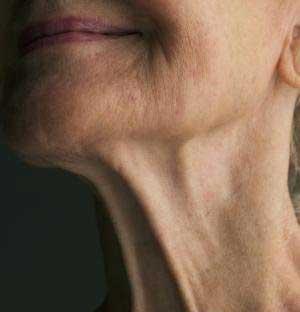 روش های جلوگیری از افتادگی پوست گردن