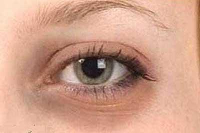 از بین بردن سیاهی دور چشم چند ماده طبیعی موثر