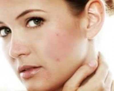 علت سیاه شدن پوست گردن چیست