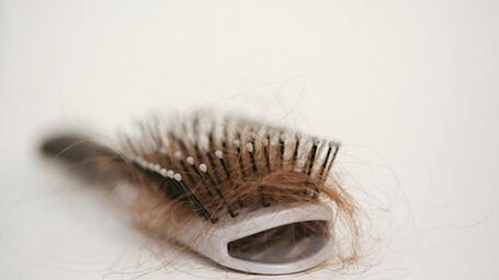 مو به مو درمورد ریزش مو