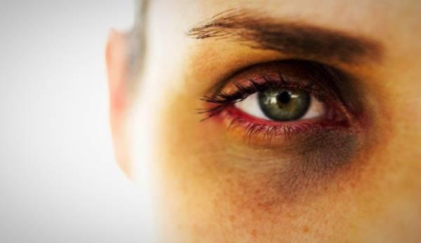 علل تیرگی چشم