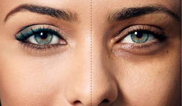 علل سیاهی دور چشم