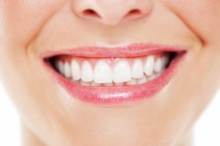 چگونه دندان های زرد را سفید کنیم