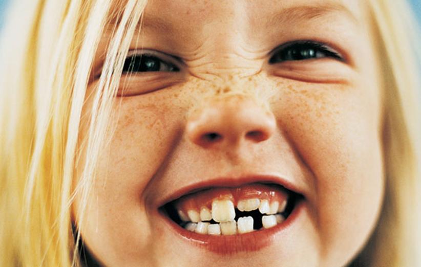 دندان کودکان