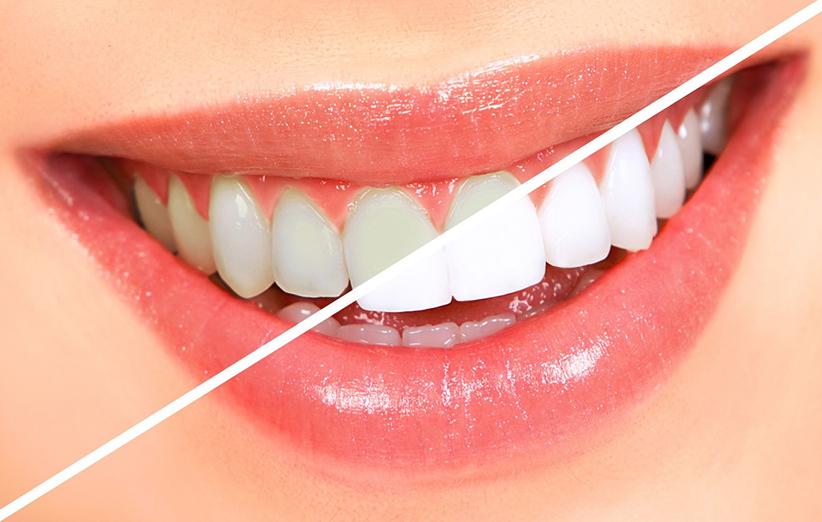 رفع زردی دندان
