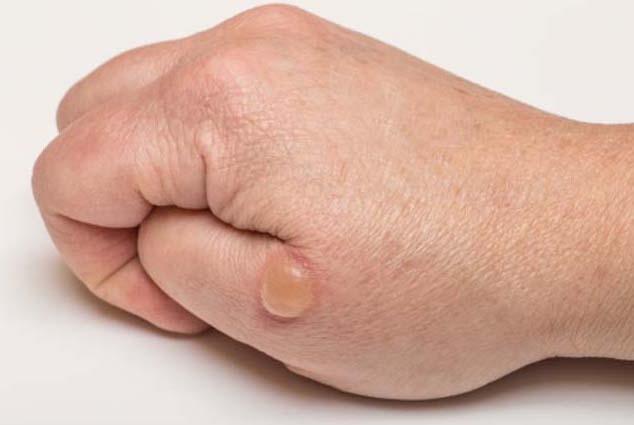 چرا پوستمان تاول میزند؟