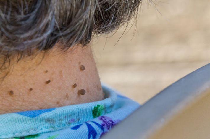 بررسی باورهای نادرست درباره منگولههای پوستی