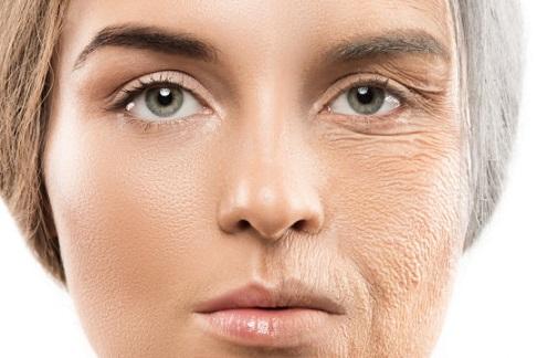پیری زودرس پوست