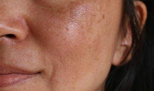 تیرگی پوست مهمترین عارضه استفاده از لوازم آرایشی نامرغوب