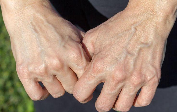 پیر شدن دست ها