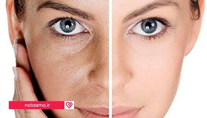 روشهای نوین جوان سازی پوست