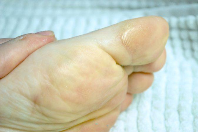 زرد شدن پاها