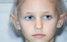 دلایل ریزش مو در کودکان چیست