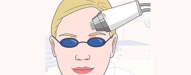 چروک زیر چشم در جوانی : لیزر جدیدترین روش برای درمان چروک زیر چشم در جوانی