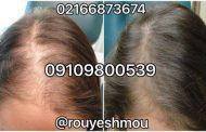 خودتان مانع ریزش موی خود شوید