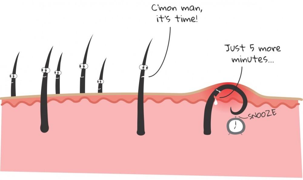 چگونه از شر موهای زیر پوستی خلاص شویم؟