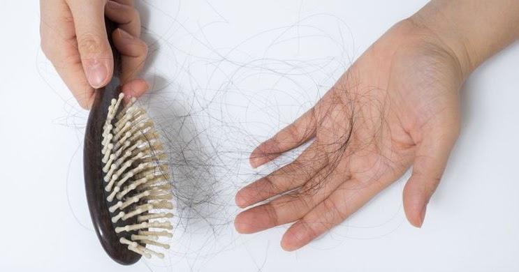 چه زمانی ریزش مو، ژنتیکی نیست؟