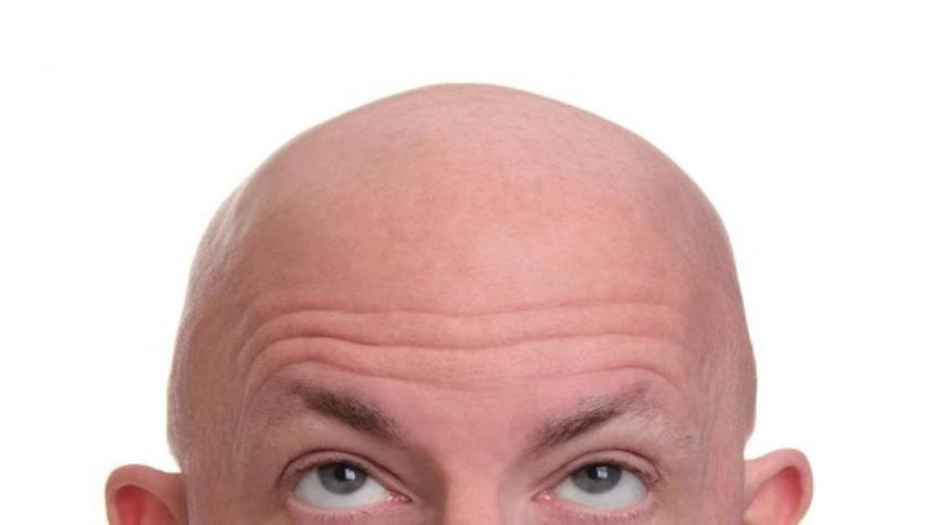 همه آنچه درباره ریزش موی مردان باید بدانیم