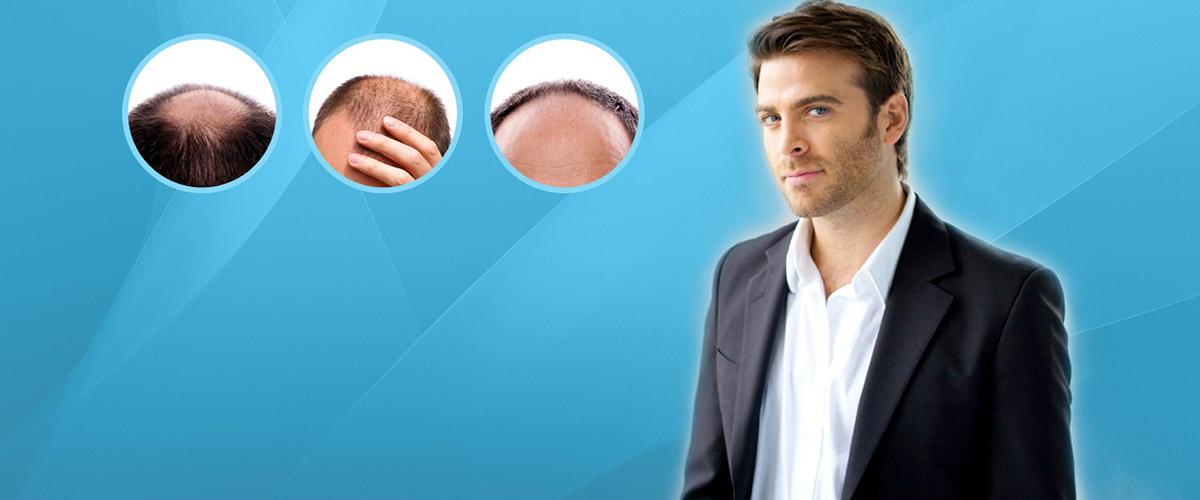 بایدها و نبایدهای پس از جراحی پیوند مو