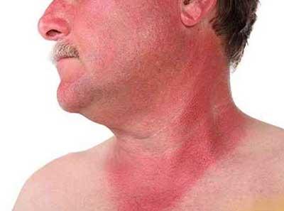 آفتاب سوختگی و درمان های خانگی موثر