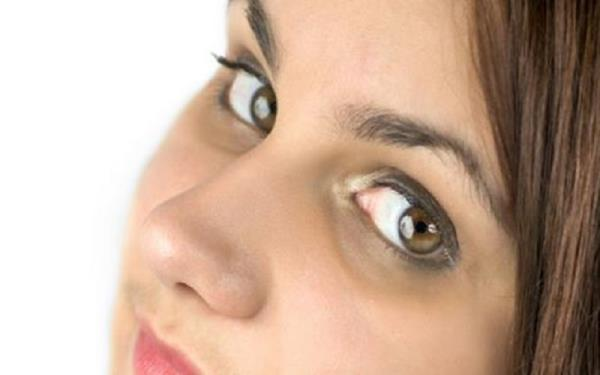 سیاهی دور چشم را درمان کنیم