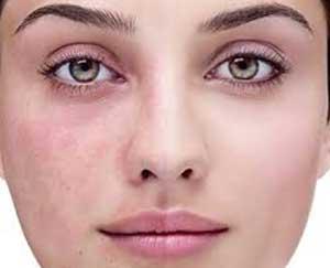 لکهای پوستی چرا و چطور ظاهر میشوند؟