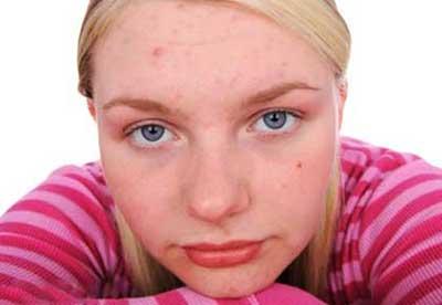عوامل به وجود آمدن جوش صورت و روشهای پیشگیری از ایجاد جای جوش