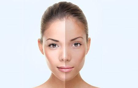 ماسکهای روشن کننده پوستهای کدر