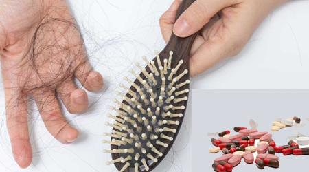 داروهایی که ریزش مو می آورند