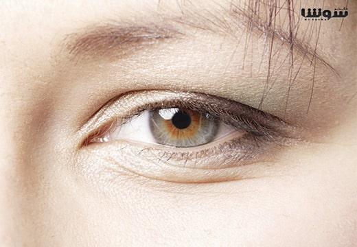 درمان چروک زیر چشم در جوانی با بهترین راه حل
