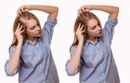 ۱۷ روش خانگی خیره کننده در ریزش مو و کچلی سکه ای
